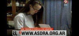educación inclusiva ASDRA